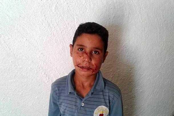 الطفل الذي محمد الوزاني الذي هاجمه الذئب