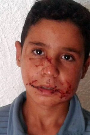 الجروح التي تعرض لها الطفل
